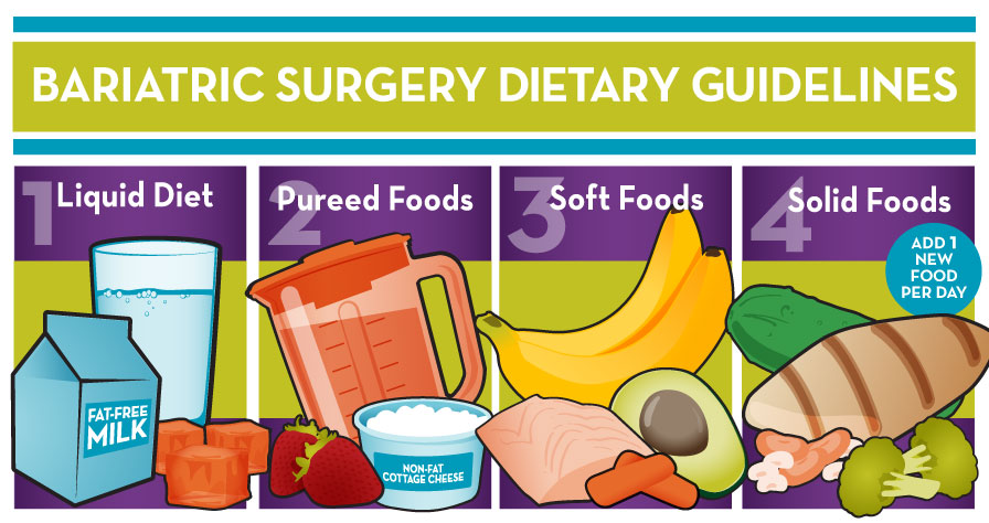 Bariatric diet guidelines for before and after surgery bariatric diet infographic forumfinder Gallery