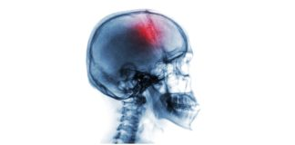 stroke causes and risk factors