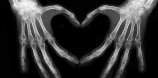 are x-rays safe