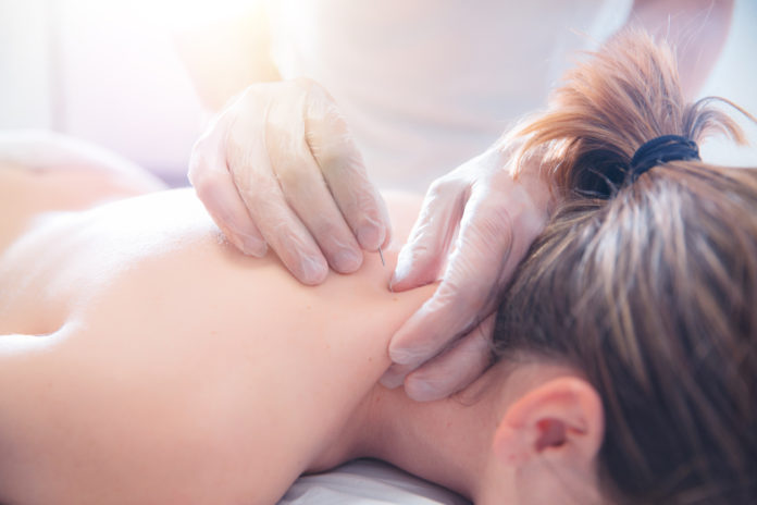 Acupuncture vs Dry Needling