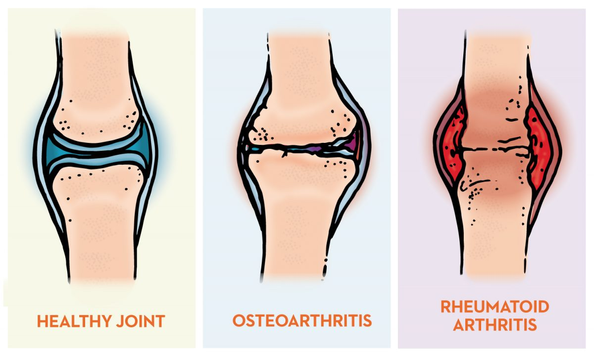 What's the Difference Between Osteoarthritis (OA) and Rheumatoid Arthritis  (RA)? - Baptist Health Blog